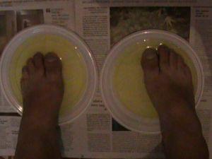 Sárga lett az egész talpom a Rivanol lábvíz-kúrától... :)